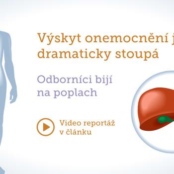 ostropestrec-mariansky-vyskyt-onemocneni-jater-dramaticky-stoupa-vasbylinkar-cz